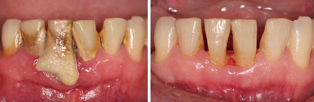 Nonsurgical Periodontal Treatment - Wyndham Periodontist
